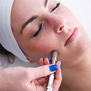 Microdermabrasion Treatment by Face of Jules in Hollywood CA
